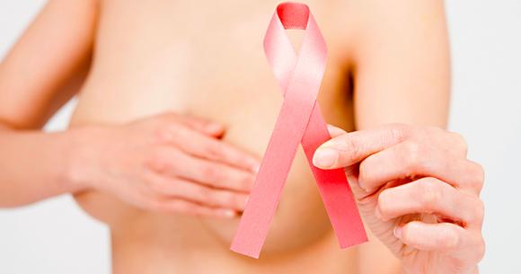 prevenção câncer de mama